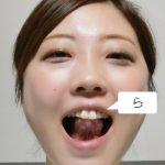 構音障害リハビリ-ら