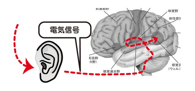 難聴と音の伝わり電子信号