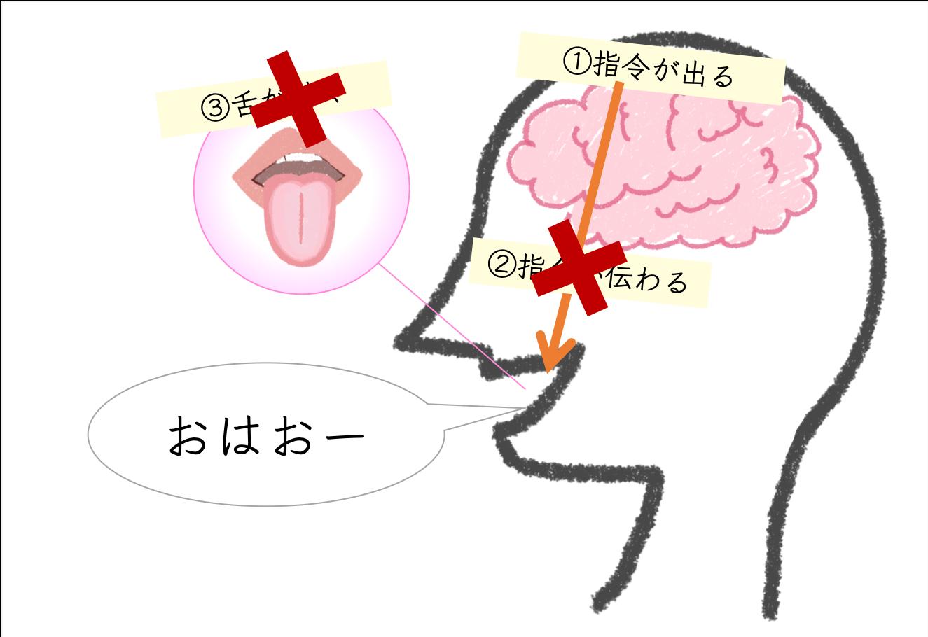 構音障害仕組み,発音しづらい